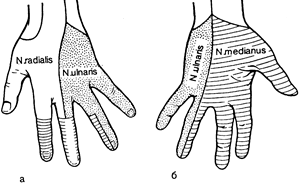 Невропатия Схема чувствительной иннервации кисти
