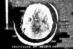 Диагностика энцефалитов Абсцесс левой теменной доли