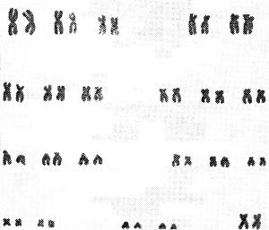 Хромосомные аберрации и геномные мутации Нормальный кариотип