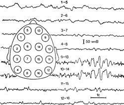Арахноидэндотелиома основания мозга