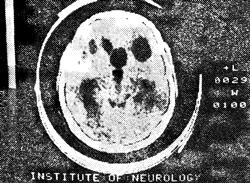 Цистицеркоз мозга