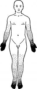 Схема расстройства чувствительности по полиневритическому типу