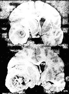 Абсцесс мозга морфологические изменения в мозге при абсцессе правой лобно-височной области