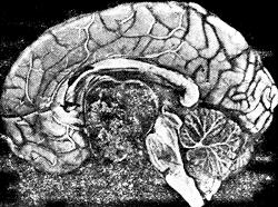 Патоморфологические изменения в мозге при экстраселлярной краниофарингиоме