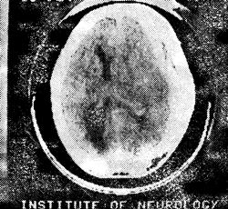 Диагностика закрытой травмы черепа