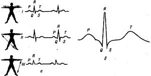 Электрические явления в сердце Стандартные отведения при записи электрокардиограммы