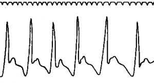 Кривая записи пульса (сфигмограмма)