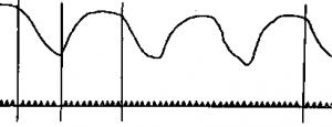 Кривая дыхательных движений