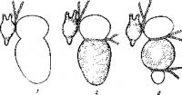 Схема наложения перевязок Станниуса