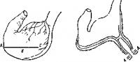 Схема разреза желудка