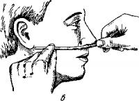 Введение катетера в нос