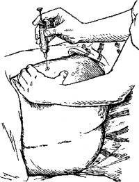 Положение больного при внутримышечной инъекции