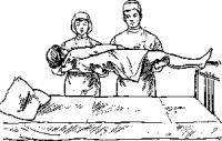 Переноска больного двумя санитарами