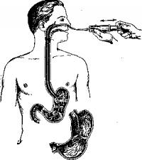 Диагностическое промывание желудка