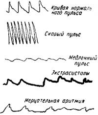 Кривыепульса