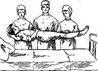 Переноска больного тремя санитарами