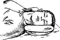 Нарушение функций желудка