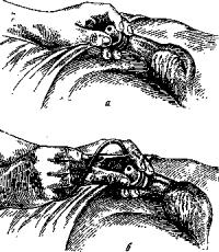 Техника введения резинового катетера