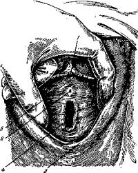 Расположение наружного отверстия мочеиспускательного канала женщины